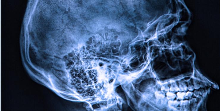 Chronique techno : la radiologie